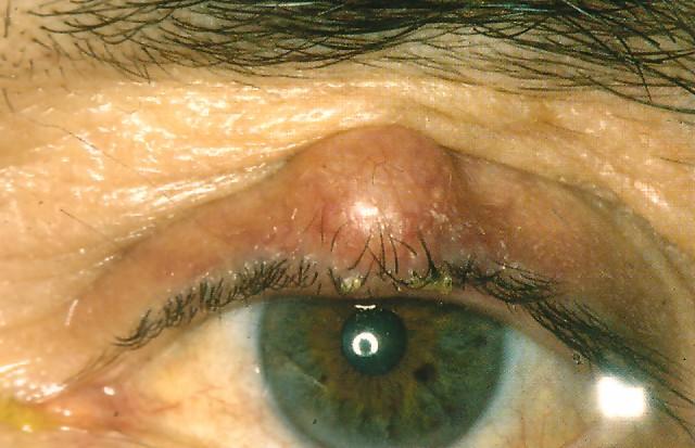 Chalazion övre ögonlock