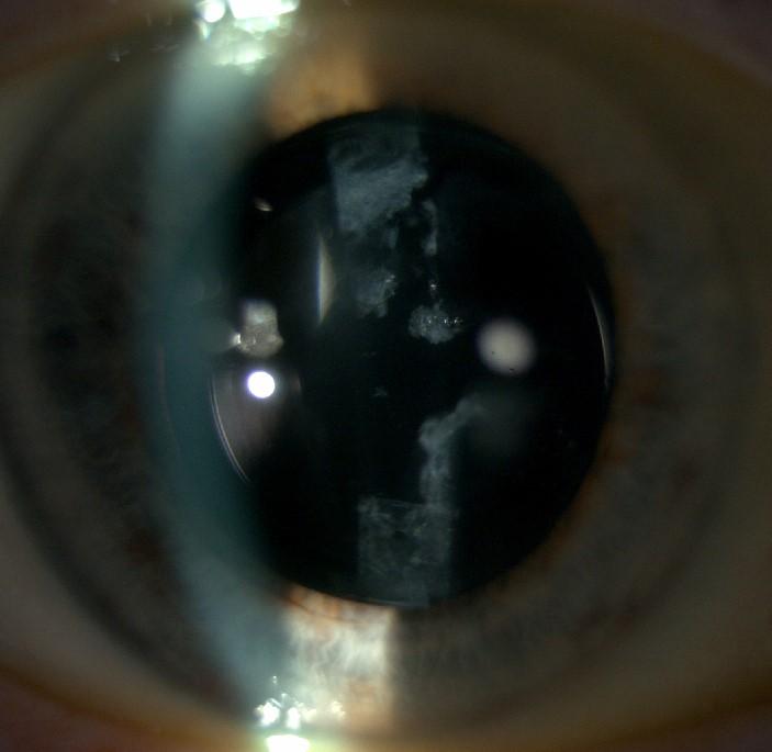Öppning i efterstarr efter laser behandling